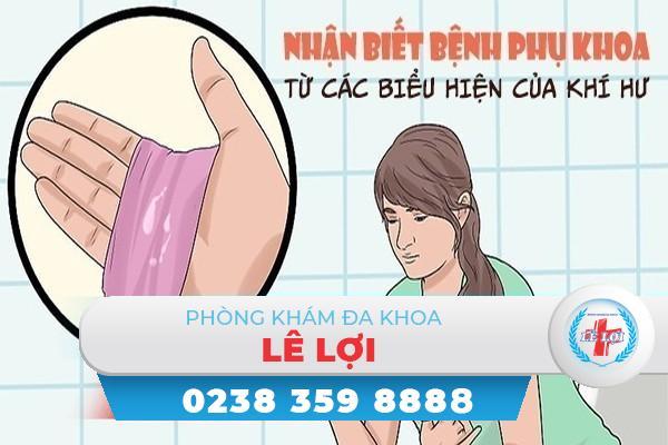 Nhận biết bệnh phụ khoa từ các biểu hiện bất thường ở khí hư nữ giới