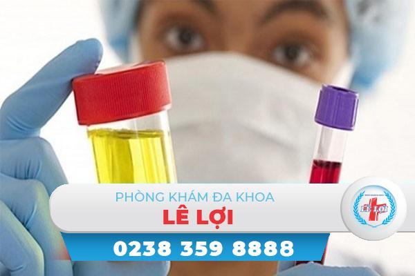 Đái ra máu – Cẩn thận với những bệnh lý nguy hiểm